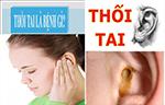 Nguyên nhân gây bệnh thối tai và cách chữa hiệu quả nhất
