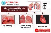 Viêm họng cấp - bệnh lý chớ nên coi thường!