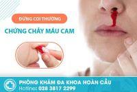 Đừng coi thường chứng chảy máu cam