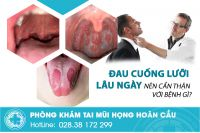 Đau rát lưỡi lâu ngày nên cẩn thận với bệnh gì?