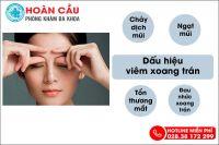 Dấu hiệu nhận biết viêm xoang trán dễ phát hiện tại nhà