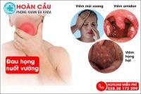 Đau họng nuốt vướng có thực sự nguy hiểm?