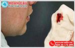 Đừng phớt lờ triệu chứng nước mũi có máu, xì mũi ra máu