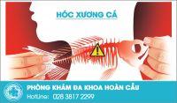 Hóc xương cá nguy hiểm như thế nào?