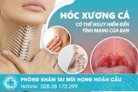 Gắp xương cá an toàn không đau tại TPHCM
