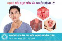 Nổi cục trong miệng là bị gì? Làm sao để khỏi?
