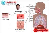Cảnh báo triệu chứng khó nuốt nước bọt đau họng cực nguy hiểm