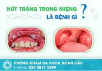 Nốt trắng trong miệng là bệnh gì? có nguy hiểm không?