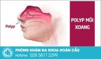 Polyp mũi xoang - căn bệnh tai mũi họng nguy hiểm