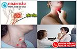 Sưng đau yết hầu là triệu chứng căn bệnh gì?