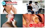 Tại sao bệnh nhân tỉnh Bình Phước lại lựa chọn chuyên gia tai mũi họng Hoàn Cầu ở TPHCM?