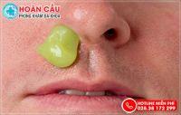 Thò lò mũi có nguy hiểm không? Cách điều trị hiệu quả, an toàn