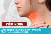Bệnh viêm họng và những thông tin cần biết