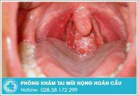Viêm họng hạt có dấu hiệu như thế nào và nên chữa ở đâu?