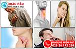 Viêm họng xung huyết: Triệu chứng và cách chữa trị hiệu quả