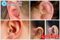 Các dạng viêm tai ngoài và cách điều trị đáng tin cậy