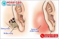 Hé lộ nguyên nhân gây viêm tai xương chũm và cách điều trị hiệu quả cao