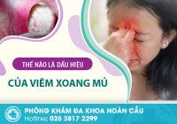 Bệnh viêm xoang mủ và những tác hại cần điều trị gấp