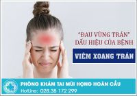 Vạch trần căn bệnh gây ra triệu chứng đau vùng trán